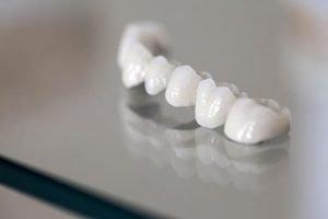 Dental Crowns and Bridges | Dentist West Ryde
