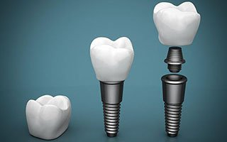 Dental Implants | West Ryde Dental Clinic