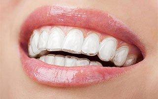 Invisalign | West Ryde Dental Clinic
