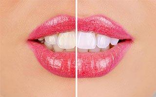 Teeth Whitening | West Ryde Dental Clinic