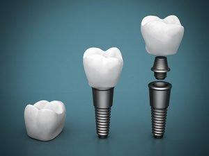 West Ryde Dental Clinic Dental Implants | Dentist West Ryde