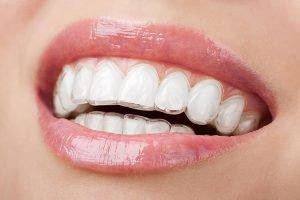 West Ryde Dental Clinic Invisalign | Dentist West Ryde
