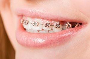 West Ryde Dental Clinic Orthodontics | Dentist West Ryde