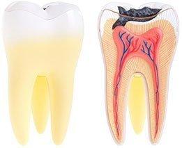 Dental Abscess   Dentist West Ryde