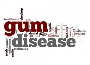 West Ryde Dental Clinic | Prevention and Treatment of Gum Disease At West Ryde Dental Clinic | Dentist West Ryde