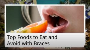 top foods to eat and avoid with braces from west ryde dental clinic