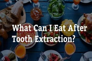 what can i eat after tooth extraction 7 tips from west ryde dental clinic